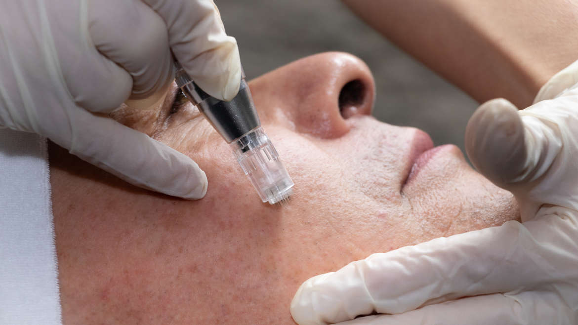 Formation Microneedling Expert Corps